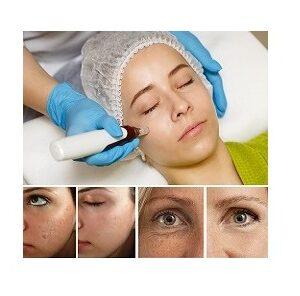 Hardware cosmetology. Mesotherapy. Dermapen. Treatment of cheek zone. Spa treatments. Face rejuvenation.